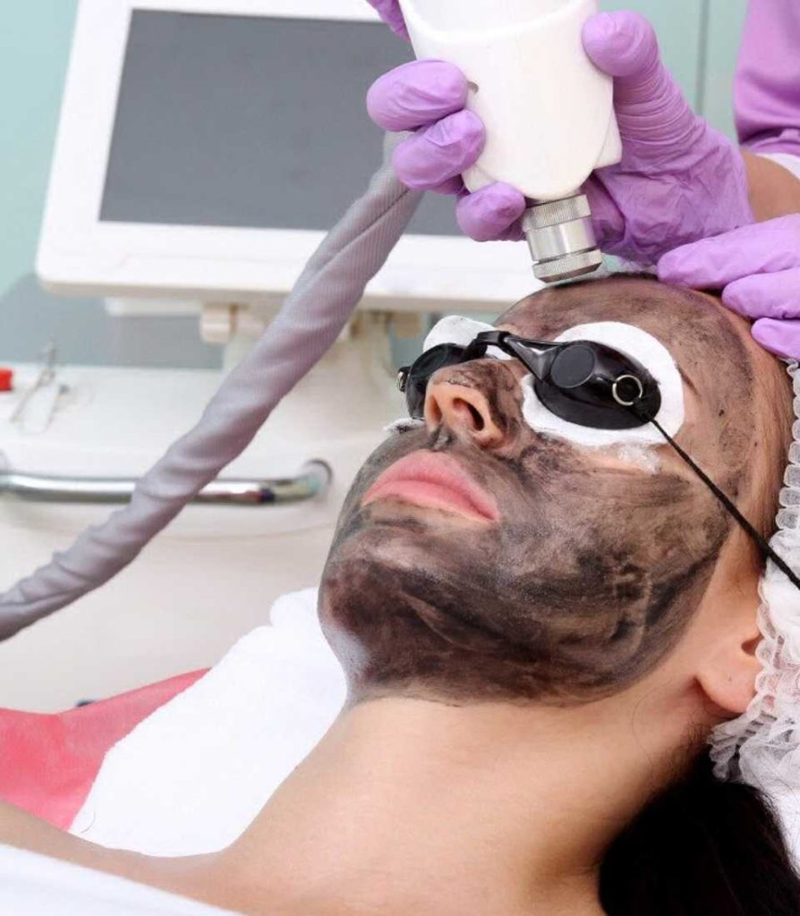 Laser Peel Treatment in Ludhiana