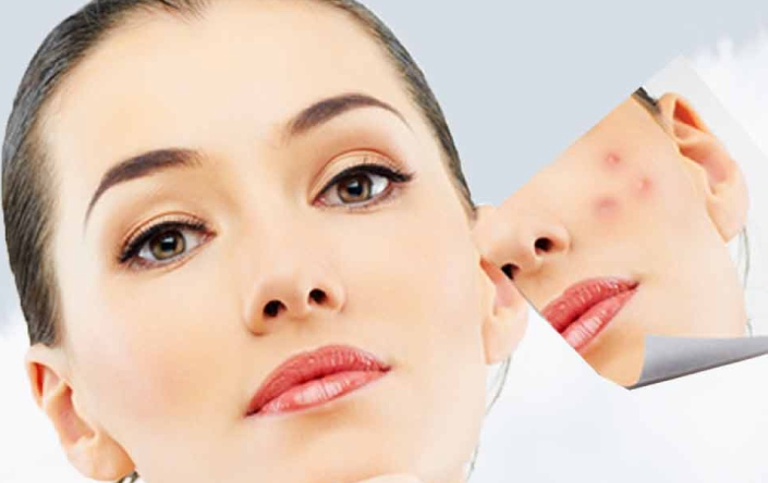 Acne scar removal treatment in Ludhaina