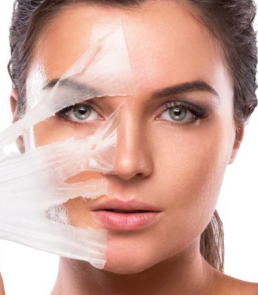 Chemical Peels Treatment in Ludhiana