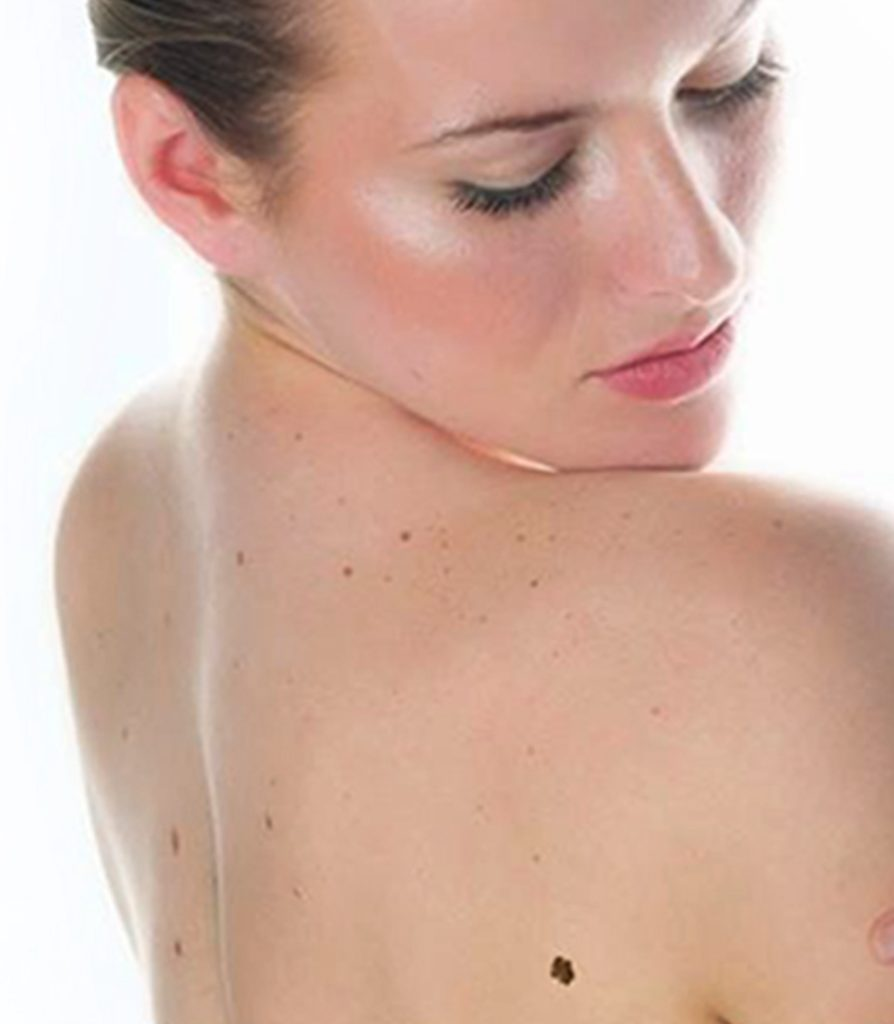 Mole Removal Treatment in Ludhiana