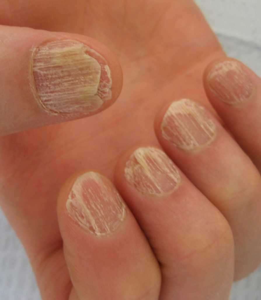 Nail infection treatment in Ludhiana