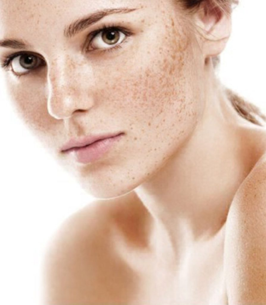 Pigmentation Treatment in Ludhiana