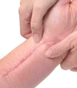 Post Surgical Scars treatment in Ludhiana