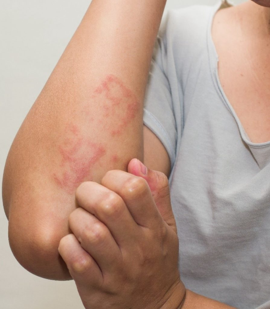 Urticaria Treatment in Ludhiana
