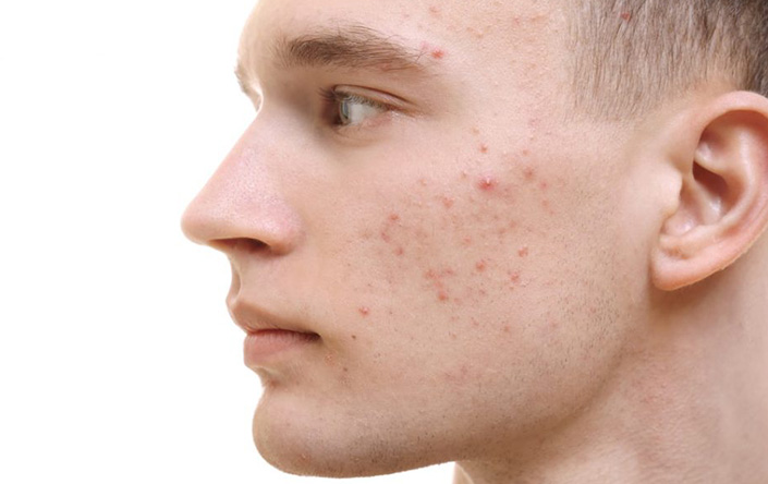 Acne Treatment in Ludhiana