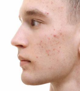 acne removal treatment in Ludhiana