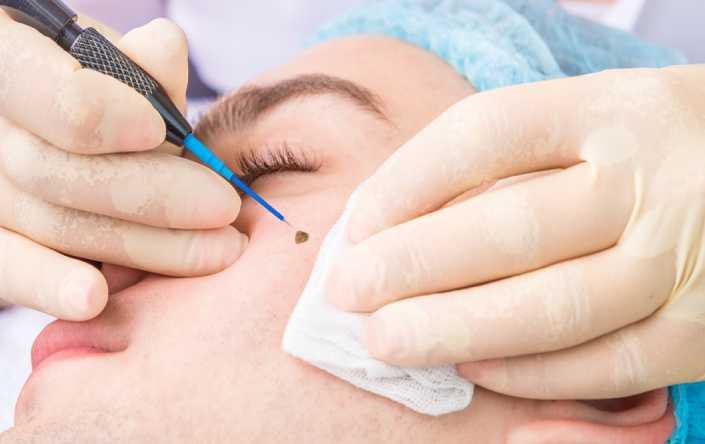 cryosurgery cost in ludhiana