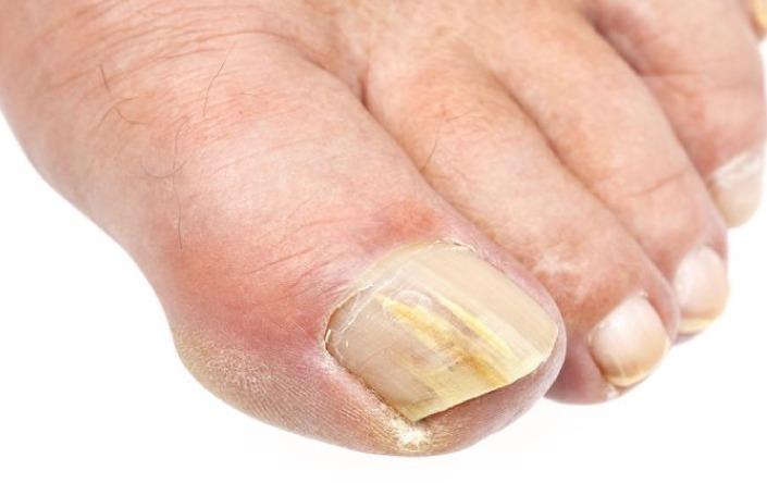 nail disease treatment in ludhiana