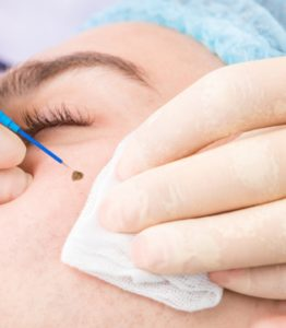 dermal filler treatment in ludhiana